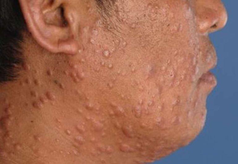 Jalisco, uno de los estados con más casos de lepra