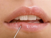 Labios: salud y sensualidad