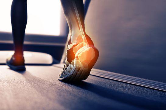 ¿Sufres pie plano?