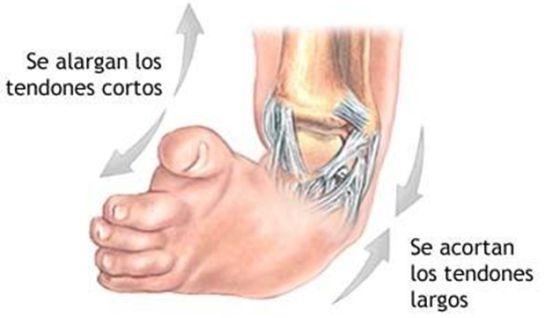 BBmundo: ¿Qué es el pie equinovaro?