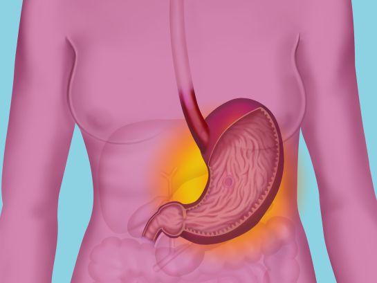 ¿Qué onda con la gastritis, colitis después del shock?