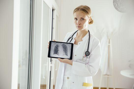 10 consideraciones del cáncer de pulmón