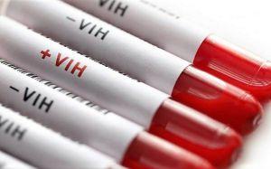 Todo sobre el VIH