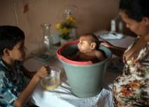 La ONU exige respetar el derecho al aborto ante brote de zika