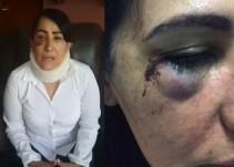 Mujer denuncia violación en autobús de ETN