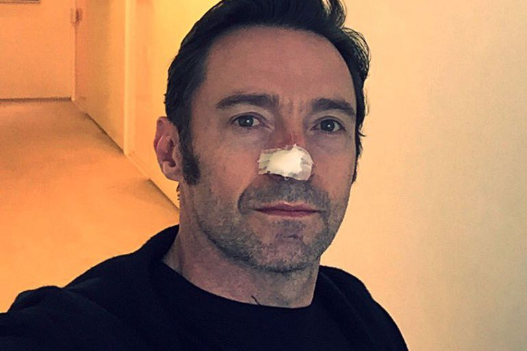 Operan a Hugh Jackman por cáncer de piel
