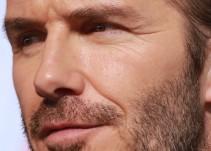 ¿Es verdad que David Beckham sufrió un accidente?