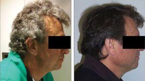 Tratamiento experimental para cáncer devuelve color negro o marrón al cabello canoso de pacientes