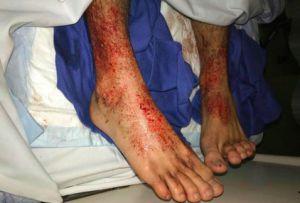 Piojos marinos atacan los pies de un joven australiano