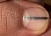 Manicurista descubre melanoma en la uña de una clienta