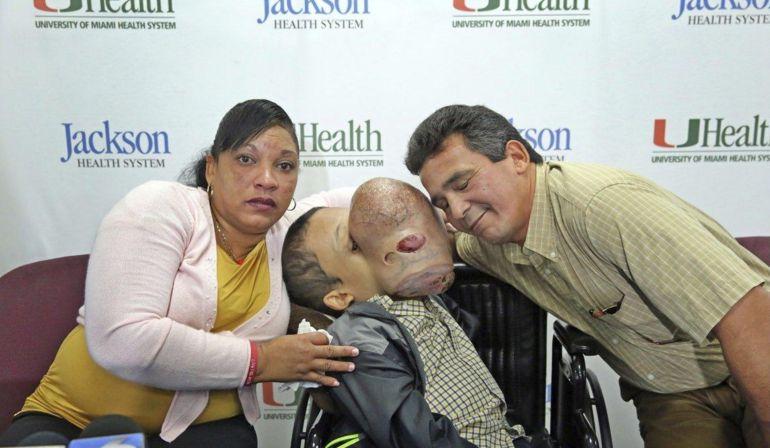 Fallece niño con tumor de 4 Kg en el rostro