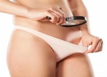 Labioplastía, la extraña cirugía genital que está de moda en Brasil