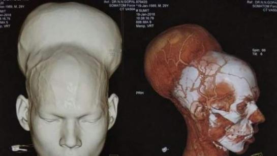Tumor Cerebral: Extirpan el tumor cerebral más grande del mundo
