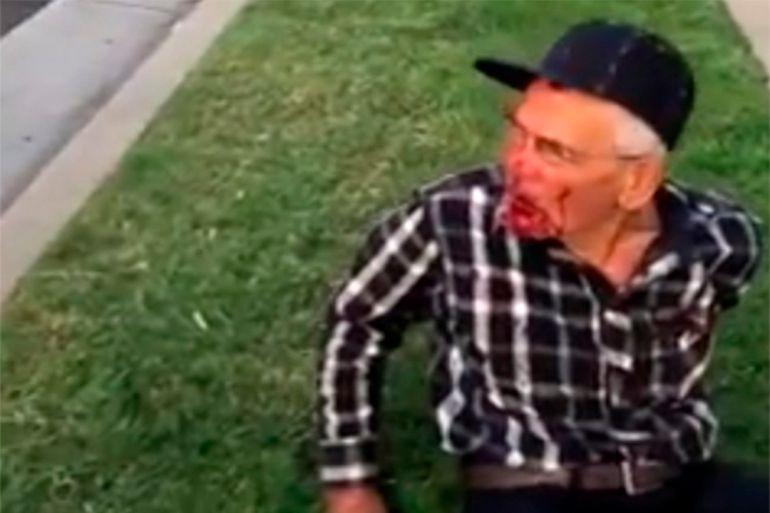 Golpean a anciano de 92 años por ser mexicano, Estados Unidos: Golpean a anciano de 92 años por ser mexicano