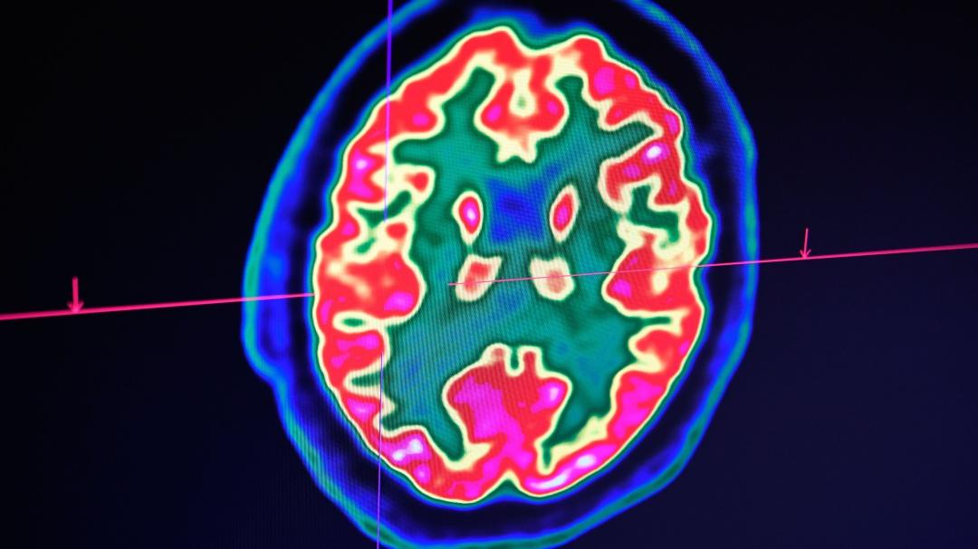 Así puedes entrenar a tu cerebro para volverlo positivo