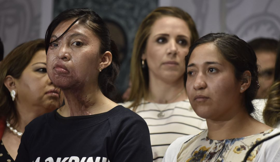 Proponen hasta 20 años de cárcel a quien ataque a mujeres con ácido