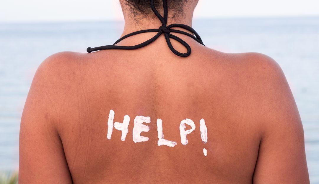 Cuidados de la piel por el sol en la playa ¡Sigue tips!