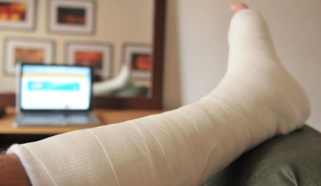 Férulas de yeso ortopédico por impresión 3D el sustituto para fracturas