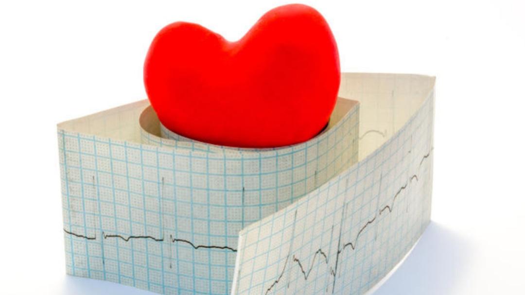 Taquicardia: Cuando el corazón se acelera