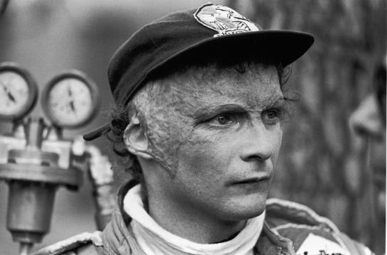 Niki Lauda la leyenda del automovilismo quedó así después del accidente de 1976 en el que burló a la muerte sobre la pista