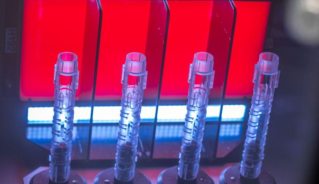 Crean análisis de sangre que predice quién perderá la vida