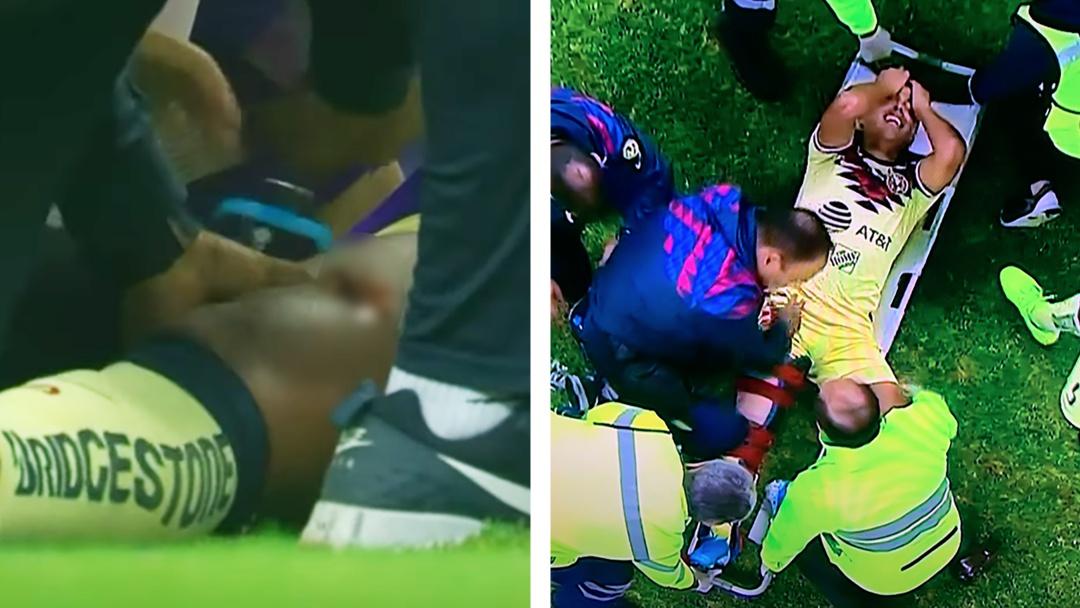 Giovani dos Santos sufre brutal lesión en el Clásico América contra Chivas