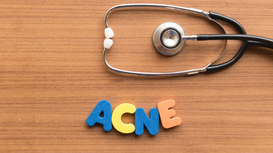 ¿Cómo eliminar las cicatrices de acné?