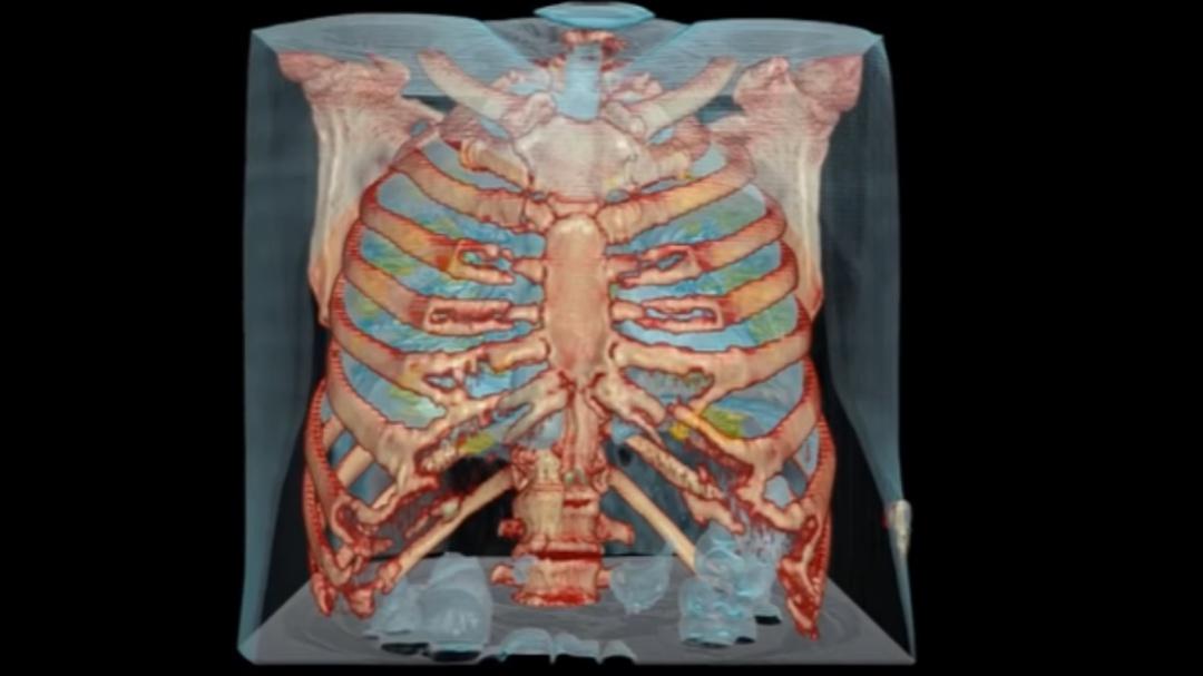 Así daña el coronavirus a los pulmones humanos