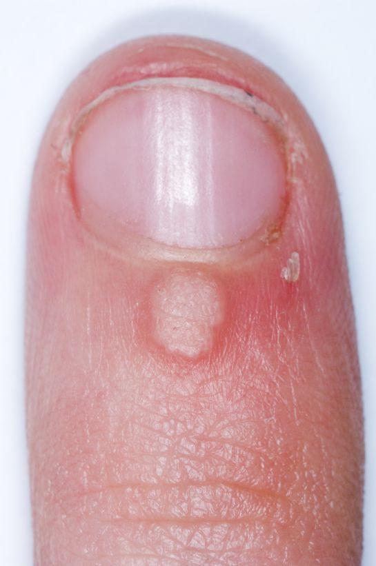 verruga en el dedo uña