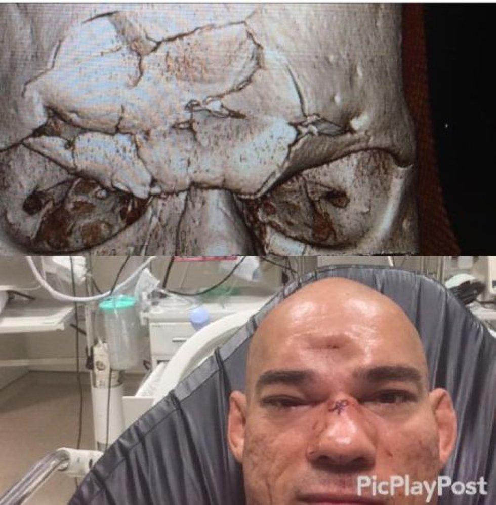 Así luce Evangelista Santos después de su cirugía de cráneo